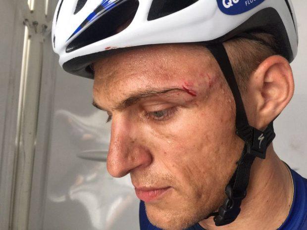 Kittel fue agredido por Andrei Grivko